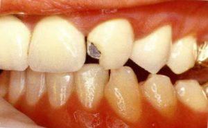 Отвалился кусок металлокпрамического зуба
