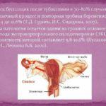 Фитнес после удаления миомы
