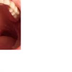 Омфалоцеле печени у плода, срок беременности 13 недель