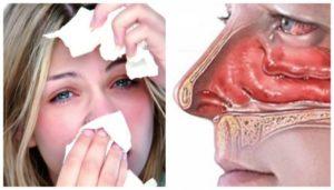 Ожог слизистой носа у грудничка