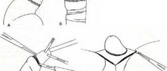 Фимоз, обрезание