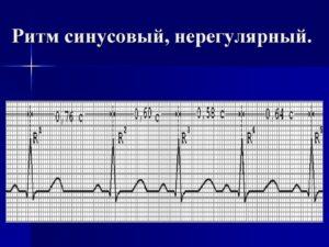 Нерегулярный синусовый ритм