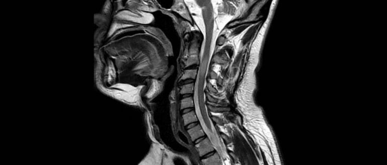 Объяснение результатов МРТ шейного отдела хребта