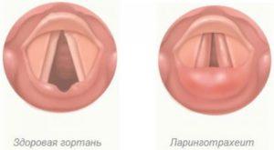 Острый ларинготрахеит при беременности