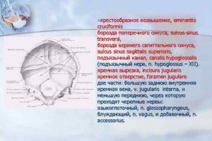 Определяется некоторая продавленность борозды поперечного синуса