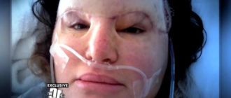 Осложнения после пересадки кожи