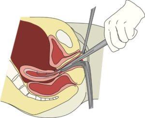 Гиперплазия эндометрия после выскабливания