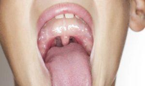 Опух язык и горло