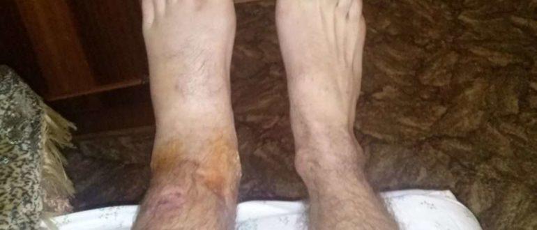 Хромота после перелома продолжаеться два месяца