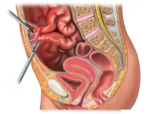 Холецистэктомия при спаечной болезни малого таза