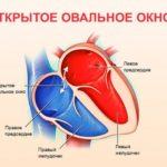 Ок и циклодинон
