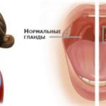 Одышка после имплантации экс