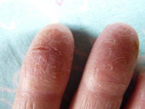 Нескончаемый зуд на пальцах ног. Шелушится и трескается кожа