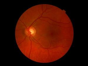 Осмотр глазного дна до беременности