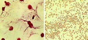 Гемофильная палочка в мазке