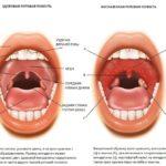 Обильные месячные-анемия