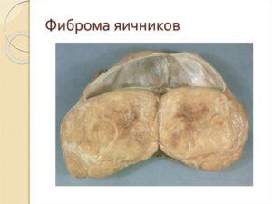Фиброма яичника и онкомаркеры