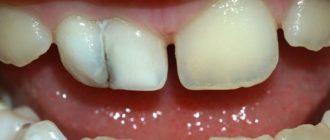 Пеньки передних зубов