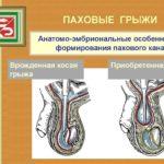 Хроническая железодефицитная анемия