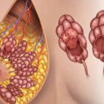 Непроходимость слезного канала у грудничка