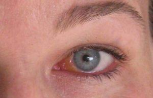 Герпес ли? Лечение офтальмогерпеса