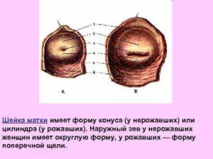 Форма зева шейки матки