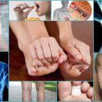 Онкология и иммуномоделирующие препараты