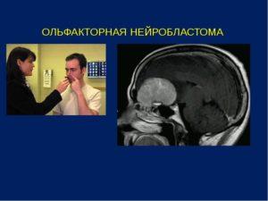 Ольфакторная нейробластома