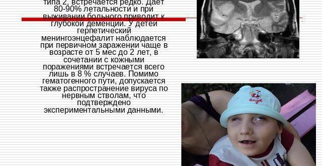 Некротический энцефалит у ребенка