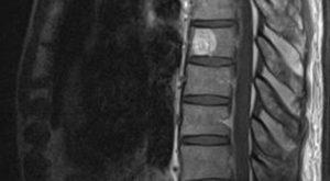 Гемангиома позвонка th6 16 мм опасна?