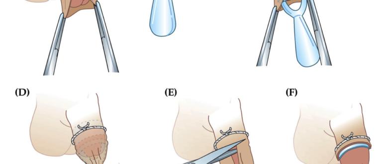 Не открывается полностью головка после обрезания крайней плоти