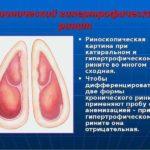Одинакова ли схема лечения хеликобактер и гастрита?