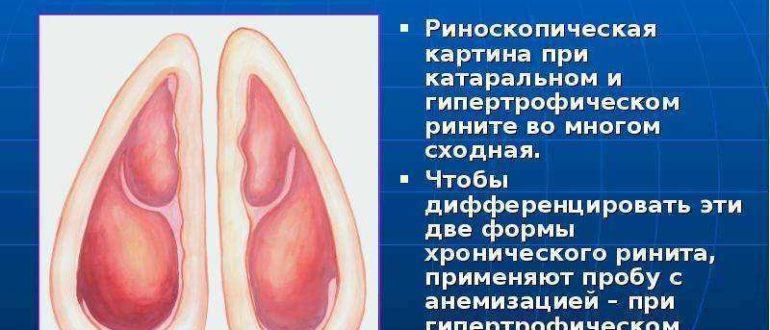 Гипертрофический ринит
