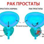 Передозировка Нурофен