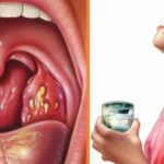 Гиперплазия слизистой желудка