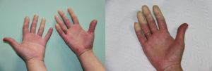 Немеет палец после зашития