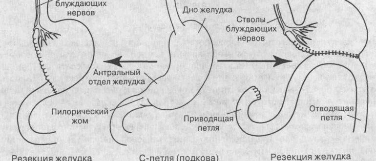 Онкология культи желудка - операция?