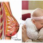 Нео пенорам и трипохопол на 2 недели беременности