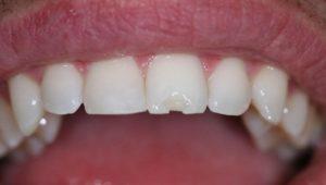 Отломился кусок зуба