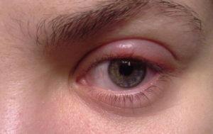 Опухло под глазом и болит еще зудит немного