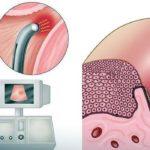 Отмена дюфастона при беременности