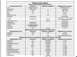 Общий анализ мочи (соли, лейкоциты)