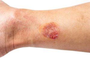 Ожог ноги рана гноится