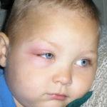Отмена Дюфастона через 2 месяца из-за тревожного расстройства