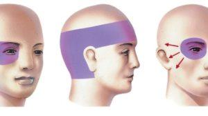 Головная боль в правом виске ухудшение зрения на правом глазу