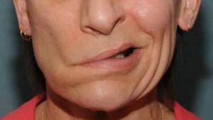 Онемение левой части лица и подергивание