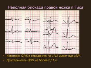 Неполная блокада сердца, увеличено в поперечнике
