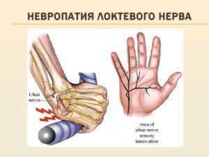 Невропатия локтевого нерва