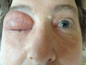 Отек после даления фурункула над глазами