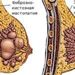 Хгч в период менопаузы